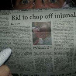 Mieszkanka Cork amputowała sobie palec z powodu chronicznego bólu