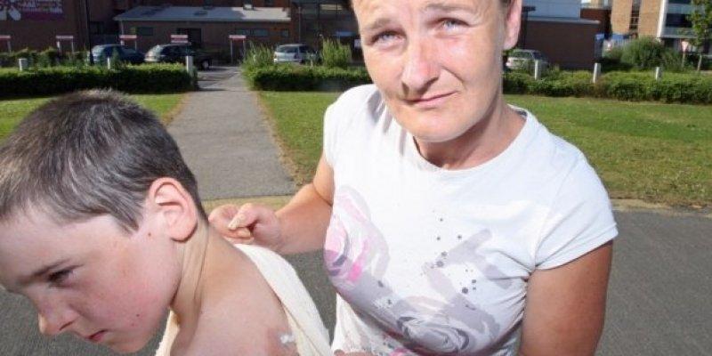 Podpalenie 11-latka w Derry